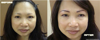 Edge Micropigmentation Inc - Photo 1