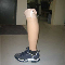 Troppman Prosthetics - Artificial Limbs - 780-438-5409