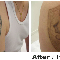 Precision Laser Tattoo Removal - Laser Tattoo Removal - 416-504-9494