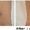 Precision Laser Tattoo Removal - Laser Tattoo Removal - 416-504-9494