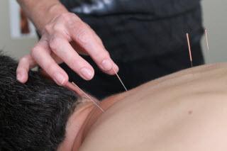 Acupuncteure Johanne Larouche - Photo 9
