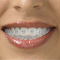 Luco Ken Dr - Teeth Whitening Services - 613-544-4248