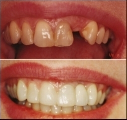 Centre Dentaire Dr Motoi - Photo 3