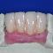 Cad Crowns Ca Inc - Dental Technicians - 613-723-7300