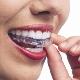 Voir le profil de Dr. Normand Bach Orthodontiste - Mercier