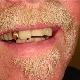Precision Denture Clinic Inc - Denturists - 780-352-2777