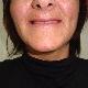Denturologiste Christine St-Pierre - Denturologistes - 450-465-0520