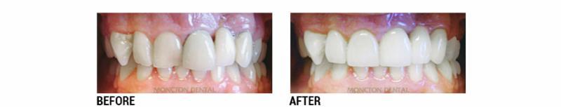 Moncton Dental - Photo 28