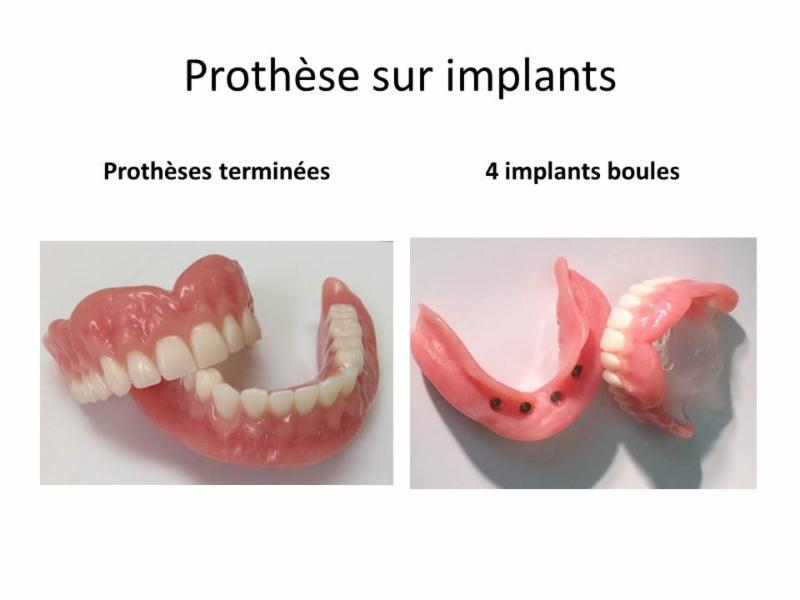 Clinique de Denturologie Johanne Têtu - Photo 4