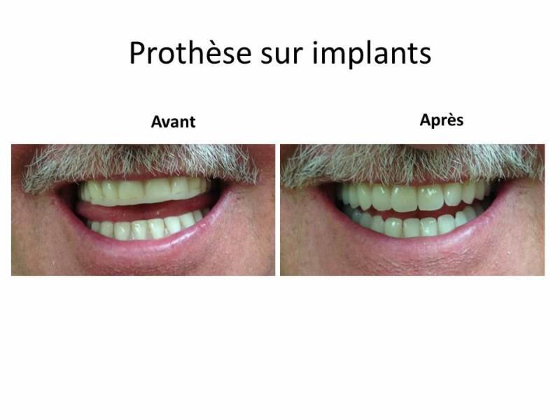 Clinique de Denturologie Johanne Têtu - Photo 2