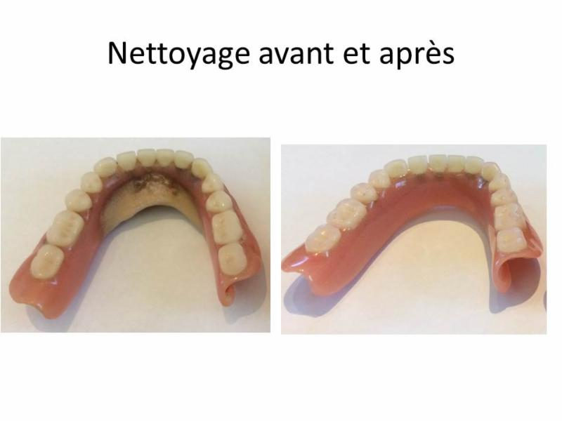 Clinique de Denturologie Johanne Têtu - Photo 5