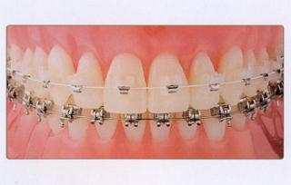 Orthodontiste Dr Robert Ledoux - Photo 4