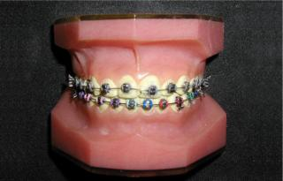 Orthodontiste Dr Robert Ledoux - Photo 9