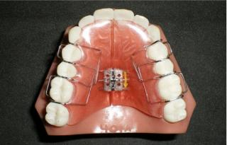 Orthodontiste Dr Robert Ledoux - Photo 8