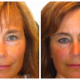 Beautiful The Permanent Make-Up Clinic - Beauty & Health Spas - 780-905-0652