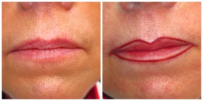 Beautiful The Permanent Make-Up Clinic - Photo 6