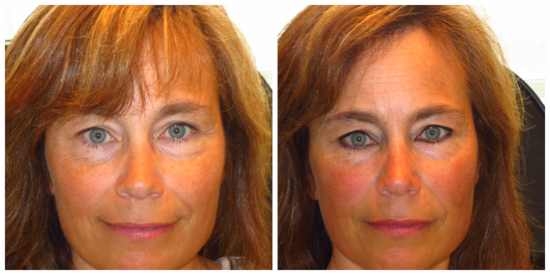 Beautiful The Permanent Make-Up Clinic - Photo 1