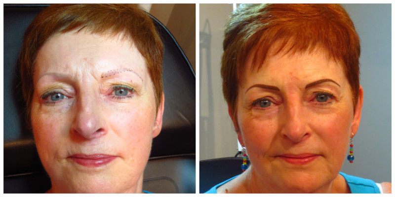 Beautiful The Permanent Make-Up Clinic - Photo 5
