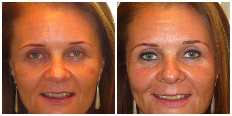 Beautiful The Permanent Make-Up Clinic - Photo 9