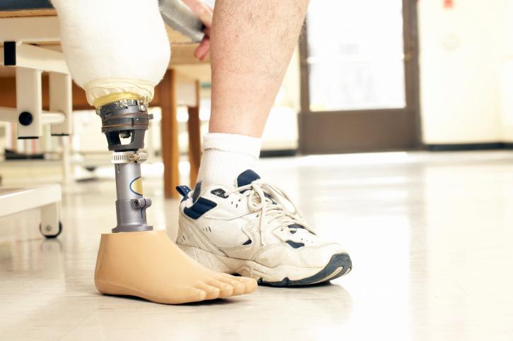 Prosthetic Energy Inc - Photo 2