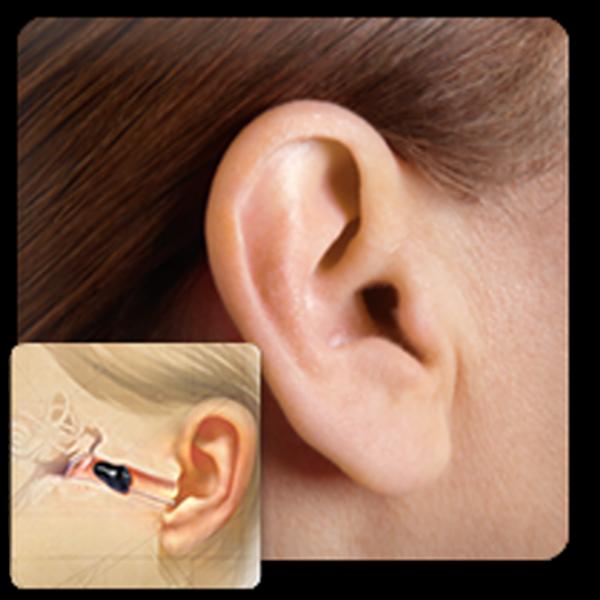 фото каналов в ушах