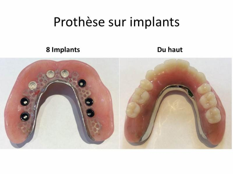 Clinique de Denturologie Johanne Têtu - Photo 3