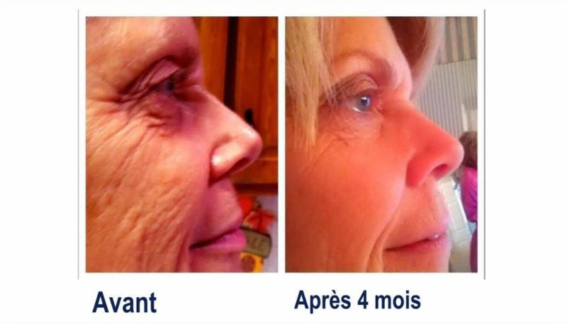 Facial esthetics renaissance center novi