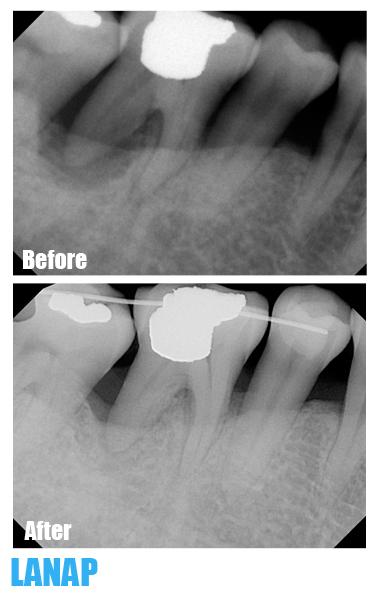 Simon Fraser Dental - Photo 2