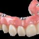 Smile Denture & Implant Clinic - Denturologistes - 613-262-6332