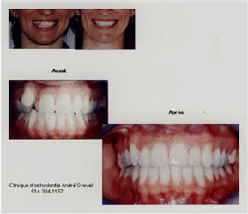 Dr George Kyritsis Orthodontiste Inc - Photo 3