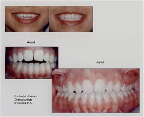 Dr George Kyritsis Orthodontiste Inc - Photo 5