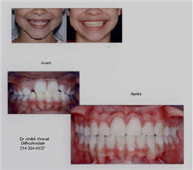 Dr George Kyritsis Orthodontiste Inc - Photo 6