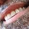 Clinique Dentaire Panama - Traitement de blanchiment des dents - 4504659100