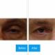 Kreidstein Michael L Dr - Cosmetic & Plastic Surgery - 4163914452