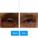 Kreidstein Michael L Dr - Chirurgie esthétique et plastique - 4163914452