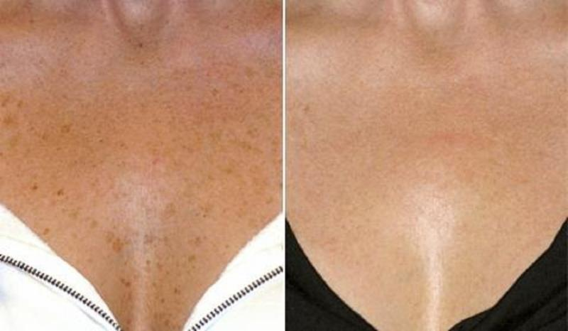 Age Spots on Chest  Before & After