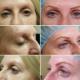 My Micro Pigmentation - Beauty & Health Spas - 6478310298
